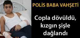 POLİS MEMURU OĞLUNU HASTANELİK ETTİ