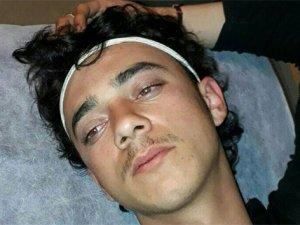 Afrin'de 23 ÖSO askeri zehirlendi