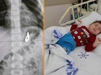 Bebeğin midesinden 17 adet mıknatıs çıkarıldı!