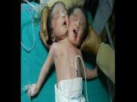 Hindistan'da çift başlı bebek,,,