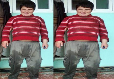 obezit-1.jpg